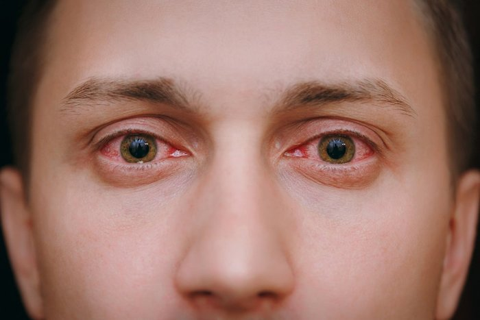how long does weed make your eyes red